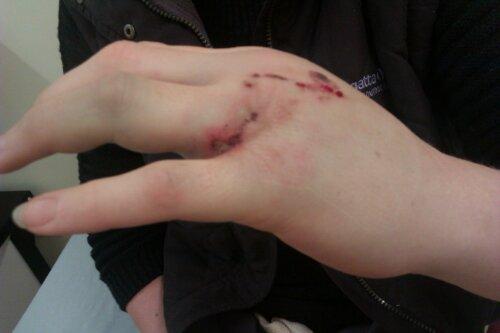 Jenny's hand
