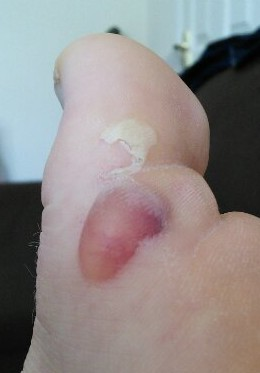 Big toe blister