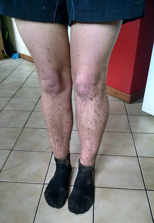 Muddy legs after Wing XC