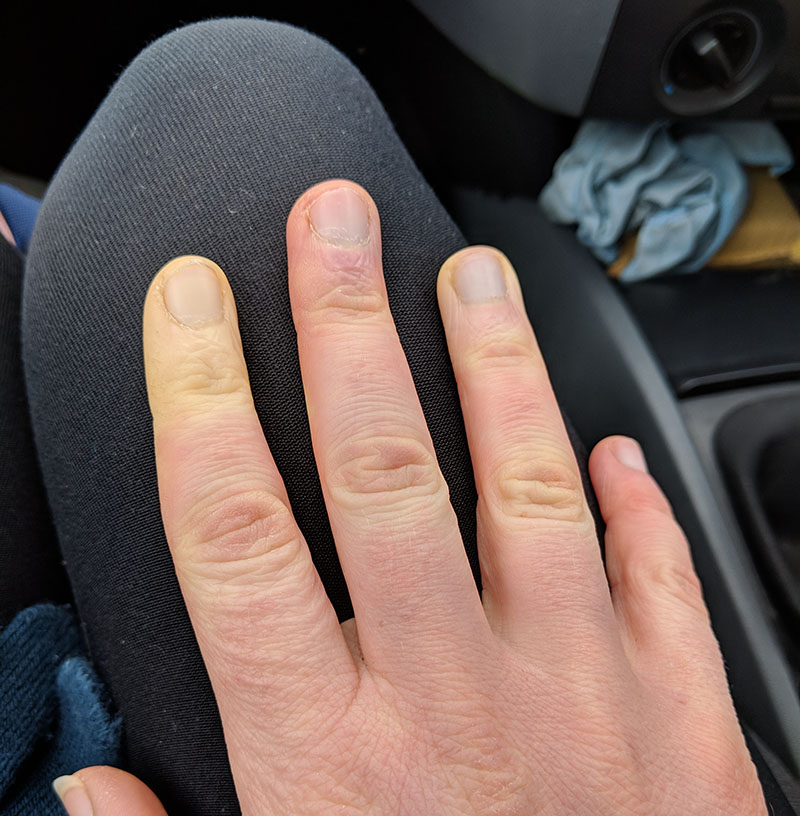 Raynaud's syndrome - fingers
